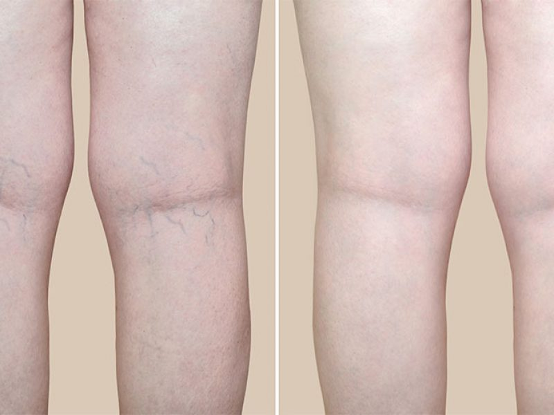 Skin-image-3